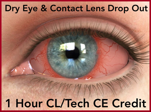 Home Study Dye Eye & Contact Lens Drop Out- Webinar Video 1 Hr. CL/Tech CE Credit
